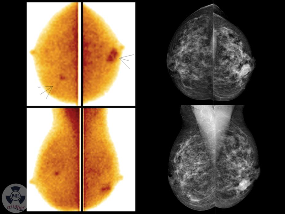 Cintilografia Mamária: Um salto em diagnóstico por imagem para detecção precoce de câncer de mama
